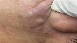 Acne Treament Under The Skin #061